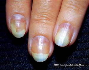 Nail Disorders Chart Colour Your Style Nail Care Tips