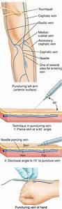 Intravenous Infusion