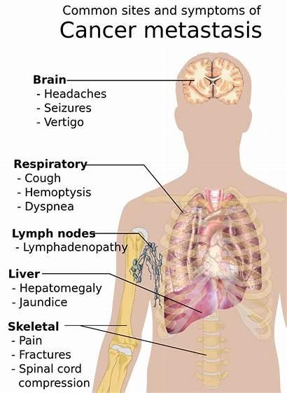 Cancer Symptoms Signs Metastasis Wikipedia Svg