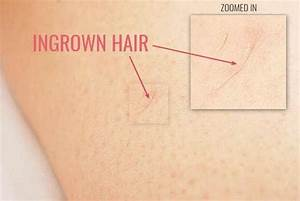 Ingrown Hair Removal For Android