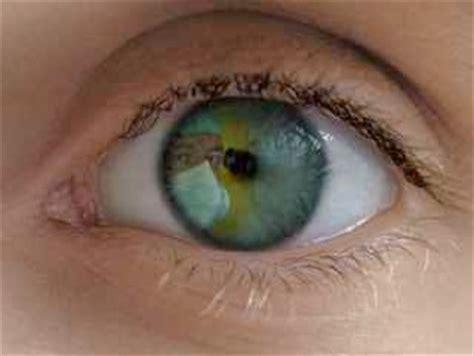 si e social l oeil cataracte f a q