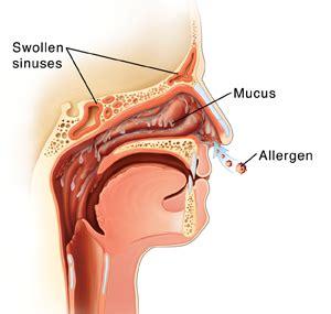 understanding nasal allergies