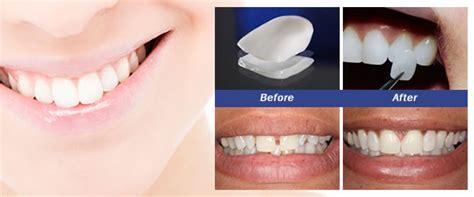 composite veneers  dental bonding   kingston
