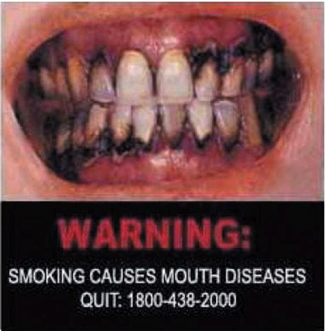 smoking  mouth disease image