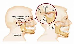 Tmj Disorder Or Tmd