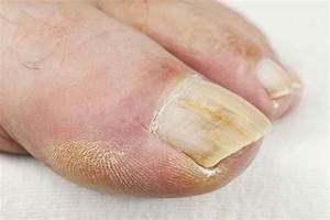 Чем лечить грибок кожи на ногах у детей