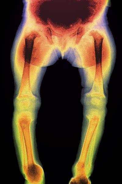 vitamin  important    bone density