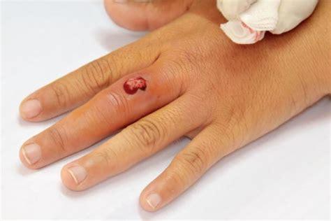 Vücudun herhangi bir bölgesinde gelişen ağır enfeksiyonun sonucunda bağışıklık sisteminin verdiği yoğun tepki. Blutvergiftung (Sepsis): Anzeichen, Ursachen, Behandlung ...
