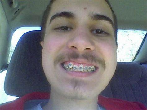 black color braces black braces for colors braces teeth