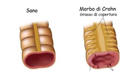 alimentazione morbo di crohn morbo di crohn quale dieta seguire
