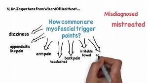 How Common Are Trigger Points