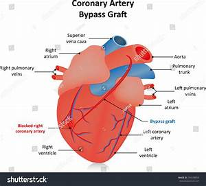 Coronary Artery Bypass Graft Labeled Diagram Stock Vector