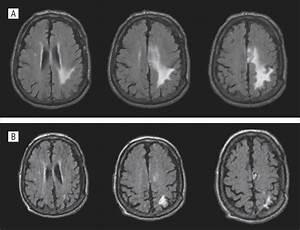 Propionibacterium Acnes Brain Abscess Appearing 10 Years