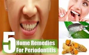 5 Home Remedies For Periodontitis – Natural Cure & Herbal ...