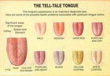 what color should your tongue be the changes in nuances of the colours of the tongue can be