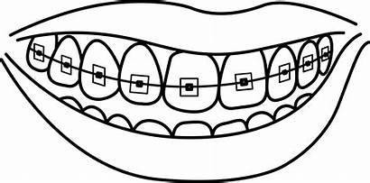 Teeth Braces Clipart Coloring Pages Mouth Template