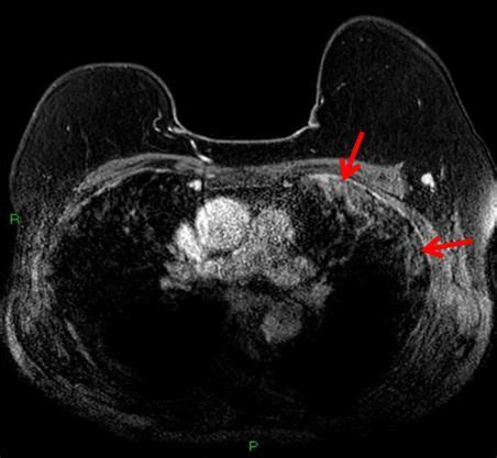 A breast mri helps a doctor determine the stage of cancer by measuring the size and spread of cancerous tissues. Breast MRI Spots Asymptomatic COVID-19 Infection | Diagnostic Imaging