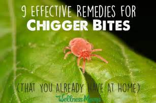 Natural Remedies for Chigger Bites