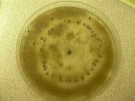 http://en.wikipedia.org/wiki/File:Botrytis_plate.png