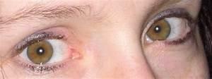 Yeux Pers Rare : couleur des yeux wikip dia ~ Melissatoandfro.com Idées de Décoration