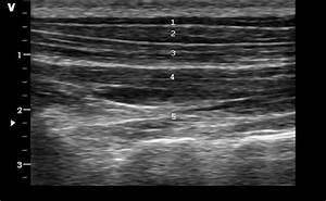 Ultrasound Image  Dorsal View Superficial And Deep