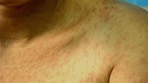 Measles Symptoms What Do Measles Look Like Abc13 Houston