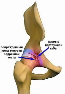 Острая боль в тазобедренный сустав