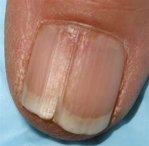 Китайское средство от грибка ногтей