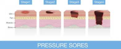 pressure sores causes treatment and prevention