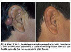 Protocolo de tratamiento de cicatrices queloides en el