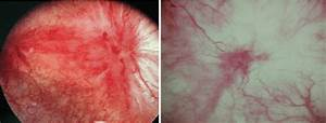A Hunner U0026 39 S Ulcer Is An Epithelial Injury Into The