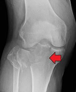 Tibial plateau fracture - Wikipedia