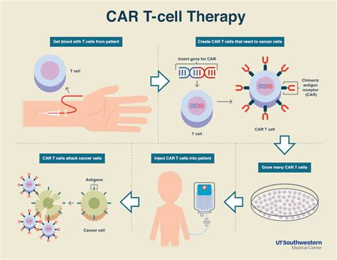 Car T-cell Therapy Safe And Effective In Youth With