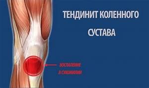 Опухло колено при псориазе