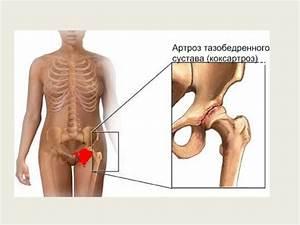 Какими мазями лечить артроз коленного сустава в домашних условиях