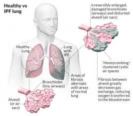 Ajit Vadakayil: INTERSTITIAL LUNG DISEASE, NANO CARBON EMISSIONS , CNG ... Interstitial lung disease