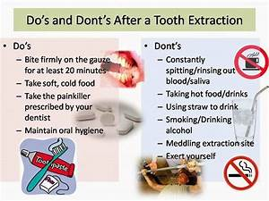 Do's and Do... Tooth Extraction Quotes