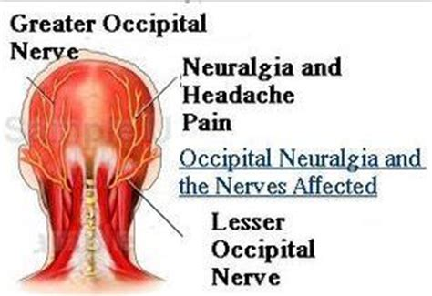occipital neuralgia symptoms treatment  surgery