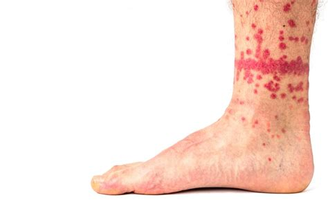 fleabites symptoms  risks  treatment