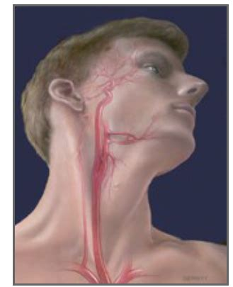 Headaches and dizziness learn to differentiate between common headache types and causes of dizziness in clinical practice powered. Welcome www.crest2trial.org