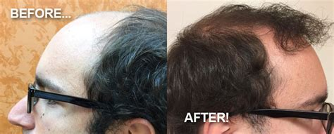 Providence Hair Restoration & Transplant Center, Rhode. Auto Glass Repair Minneapolis. How To Get A Business Management Degree. Knee Replacement Weight Limit. Garage Door Repair West Palm Beach Fl. Childrens Savings Account Cold Flu Prevention. Moving Company Ft Lauderdale The Best Bank. Greater New Haven Ob Gyn Plumber Lancaster Ca. Online Money Transfer To Philippines From Usa