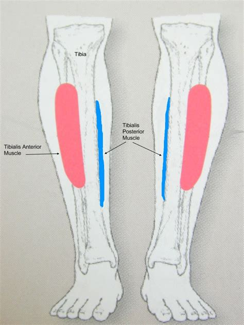 shin splints   common sport injury caused  muscle
