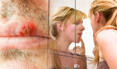 how to get rid of a cold sore wash your with soap