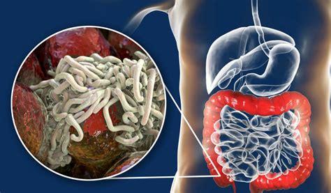 Paraziti u crevima mogu da naprave haos u celom telu: 4 ...