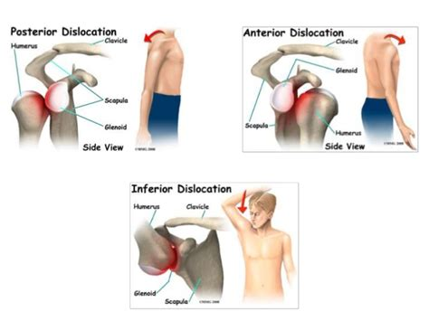 Shoulder Dislocation: Causes, Types, Symptoms & Treatment ...