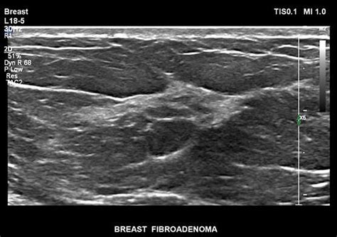 Breast Ultrasound Images Breast Sonography