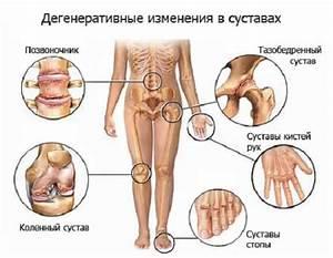 Боли в суставах ног у ревматолога