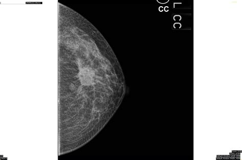 Sharemyradiology Infiltrating Ductal Carcinoma Of