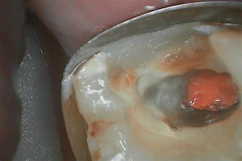 case   molar  longdeep cavity ivory dental