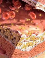 Чистка печени повышенный холестерин
